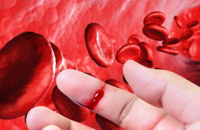 Hukum Berbekam, Donor Darah, dan Cabut Gigi saat Berpuasa